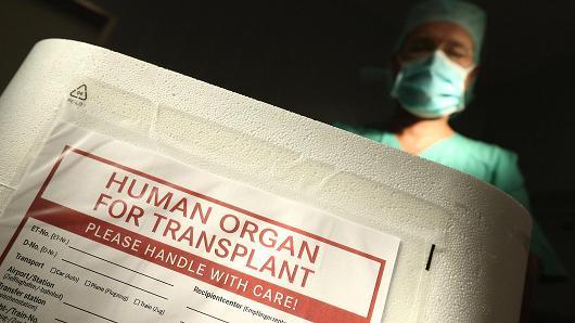 3D Printing and solution to organ transplant shortage
